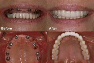 dental implants replacing missing upper teeth to improve function and smile