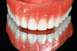 your denture